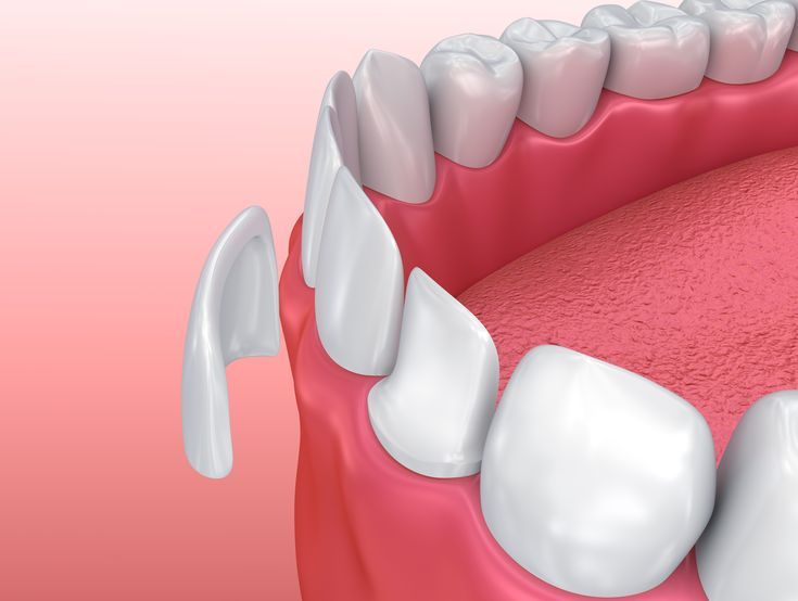 Q: What are Porcelain Veneers? A: Porcelain veneers are made from an extremely thin sheet of porcelain that is molded and placed atop your existing tooth.  Q: What Can Porcelain Veneers Fix? A: - Chipped teeth - Cracked teeth - Stained teeth - Misshapen teeth - Gapped or uneven teeth