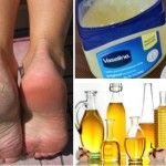 4 Brilliant & Effective Home Remedies For Cracked, Sore And Stinky Feet