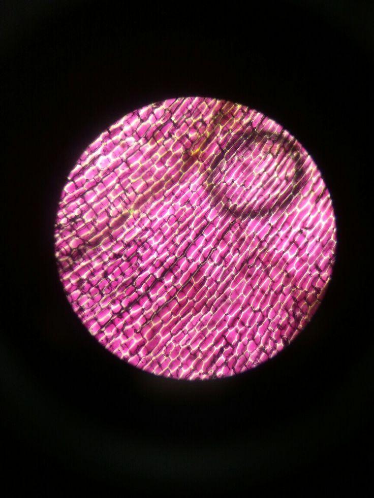 Onion Epidermis Cells