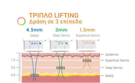 Το ULTRAFORMER® ΗΙFU, χάρη στη χρήση της τεχνολογίας Εστιασμένων Υπερήχων Υψηλής Έντασης, είναι το μοναδικό που δρα αποτελεσματικά σε 3 επίπεδα του δέρματος. Με αυτόν τον τρόπο επιφέρει άμεσα και μη επεμβατικά, το αποτέλεσμα του λίφτινγκ και στις 3 στιβάδες του δερματικού ιστού του προσώπου.