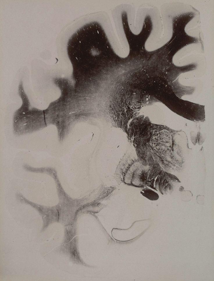 Mejores 99 imágenes de neuro en Pinterest | Anatomía, Ciencia y Cruces