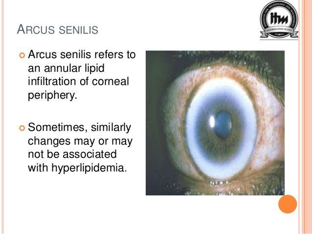 hyperopia senilis