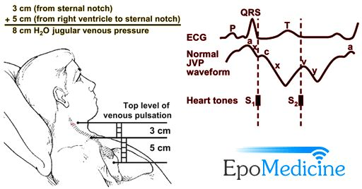 Jugular venous pressure