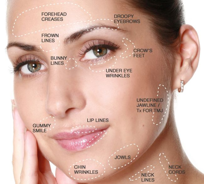BOTOX® & Dysport® give a temporary paralysis to the underlying facial muscle movement by blocking the pathway for proper muscle contraction. As a result, the skin overlying these facial muscles will appear smoother and the wrinkles softened. The forehead, glabella (between the eyebrows) and crow's feet lines respond well to relaxation of the underlying muscles with BOTOX® & Dysport®.