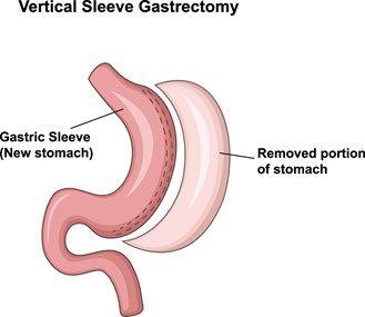 Gastric Sleeve   Sleeve Gastrectomy   VSG   Sleeve…