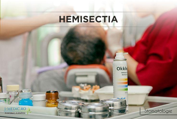 Hemisectia reprezinta taierea unui dinte cu doua radacini in jumatate, divizand in acest fel coroana dentara, precum si radacinile dintelui. De cele mai multe ori aceasta interventie este efectuata de catre un medic parodontolog, medic specializat in tratarea afectiunilor gingivale. http://www.i-medic.ro/stomatologie/hemisectia