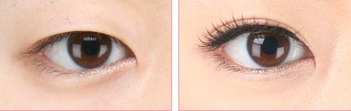 Here are tips on how to get double eyelids quickly. Discussed tips include using glue, double eyelid tape and surgery. All tips and steps on how to apply these are discussed. Also, find the guide on how to remove double eyelid tape easily.