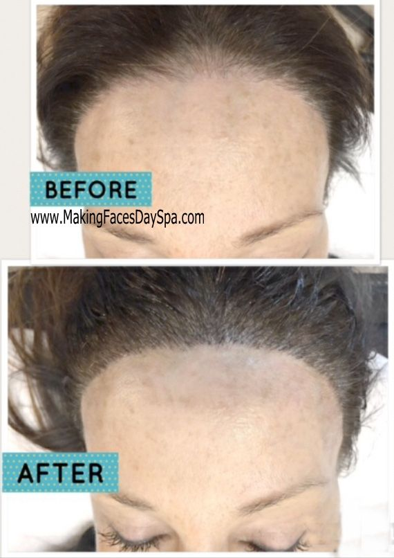 MicroBlading For Eyebrows, Bald Spot U0026 Hairline Restoration