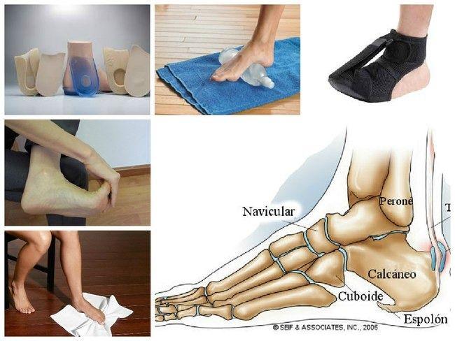El espolón calcáneo se produce cuando los depósitos de calcio se acumulan en la parte inferior del talón. Cuando la fascia plantar o planta del pie se inflama, aparece un dolor punzante en el talón, el cual por lo general sucede en la mañana o cuando uno empieza a caminar. Enlaces Patrocinados En el caso …