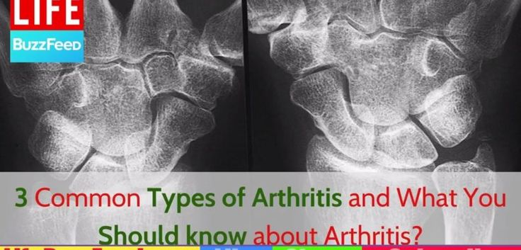 Home Remedies: Three Common Types of Arthritis and What You Should know about Arthritis? http://homeremediestv.com/home-remedies-three-common-types-of-arthritis-and-what-you-should-know-about-arthritis/ #HealthCare #HomeRemedies #HealthTips #Remedies #NatureCures #Health #NaturalRemedies  http://HomeRemediesTV.com/Best-Supplements What You Should know about Arthritis? There are more than 100 different forms of arthritis and related diseases   Related Post  Arthritis  Know Foods to Eat and…