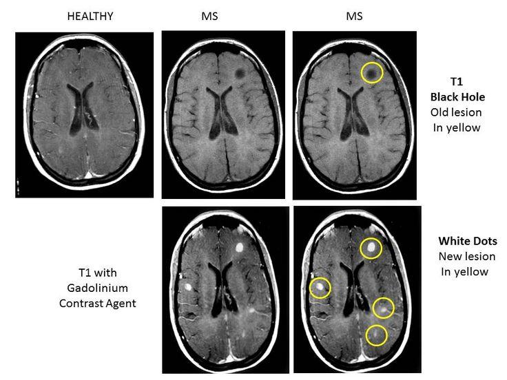 Education whats an mri mri multiple sclerosis