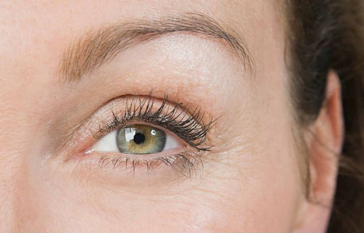 Learn about how #Ultherapy and #Botox procedures can help you attain taut, vibrant, and more youthful looking #eyes.