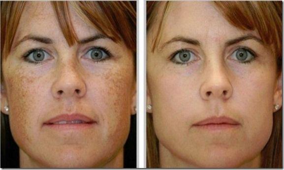 Para mejorar la apariencia de las manchas en la piel es muy importante que…