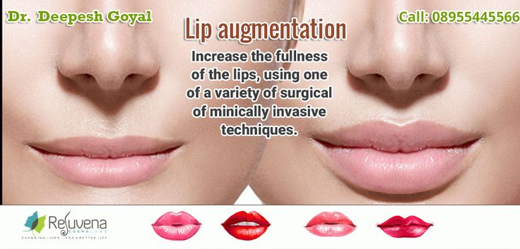 Best Laser Lip surgery in Jaipur Rejuvena cosmo care is one of the best cosmetic laser lip surgery and reconstruction clinic in Jaipur. Dr. Deepesh Goyal is the experienced and qualified lip surgeon in jaipur. For more Information about lip surgery in Jaipur call now at 9024445544. lip surgery in jaipur