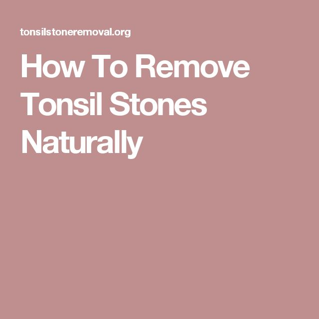 how to remove tonsil stones you can t see