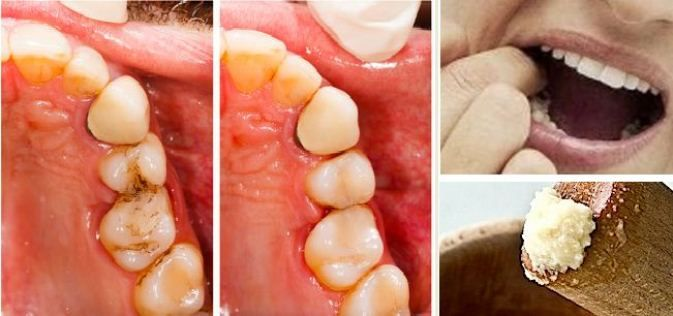 The most common cause for toothache and jaw pain is tooth cavity. The common symptoms of tooth cavity are difficulty while chewing food, swelling, tooth pain, etc.