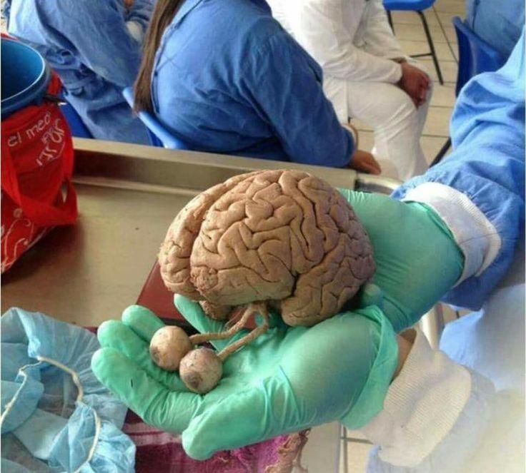 Da osservare il particolare della continuità trai bulbi e il cervello attraverso i due nervi ottici.