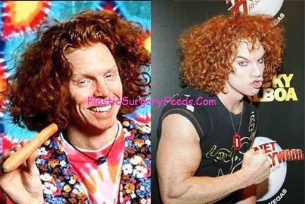 Carrot Top Plastic Surgery Gone Wrong Picture