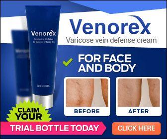 Venorex Varicose Vein Cream And Natural Treatment For Veins