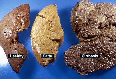 Take a look at these three samples of livers. One of these livers shows the common complications of chronic hepatitis, called cirrhosis. This is a scarring of the liver. Cirrhosis makes it difficult for the liver to function and can lead to liver failure, a life-threatening condition.