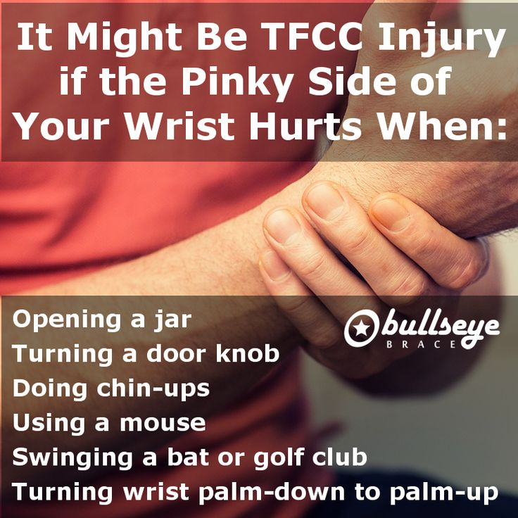 14 Best Ulnar Sided Wrist Pain Amp Tfcc Injuries Images On