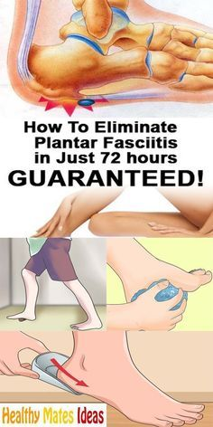 PLANTAR FASCIITIS OR JOGGER'S HEEL. HOW TO GET RID OF THE PAIN IN THE HEEL!