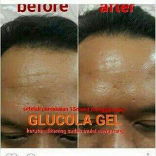 pin 75291E4C/ 5400DD9E Whatsapp 081272817398 Line Id simplyhenny# Glucola Gel adalah sebuah terobosan terbaru di dalam dunia kecantikan yang berguna sebagai cleanser dan filler gel untuk kulit wajah.  MGI Glucola gel mengandung bahan natural dan alami yang efektif mencerahkan kulit.  Glucola Gel sebagai nutrisi yang sangat diperlukan dengan bahan kandungan yang memiliki kualitas tinggi di dalam bidangnya, yaitu dari Glutathione + Collagen yang sangat tepat untuk merawat kecantikan kulit…