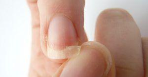 Ezt kell fogyasztanod, ha törékeny a körmöd és rosszul alszol – szupertanácsok