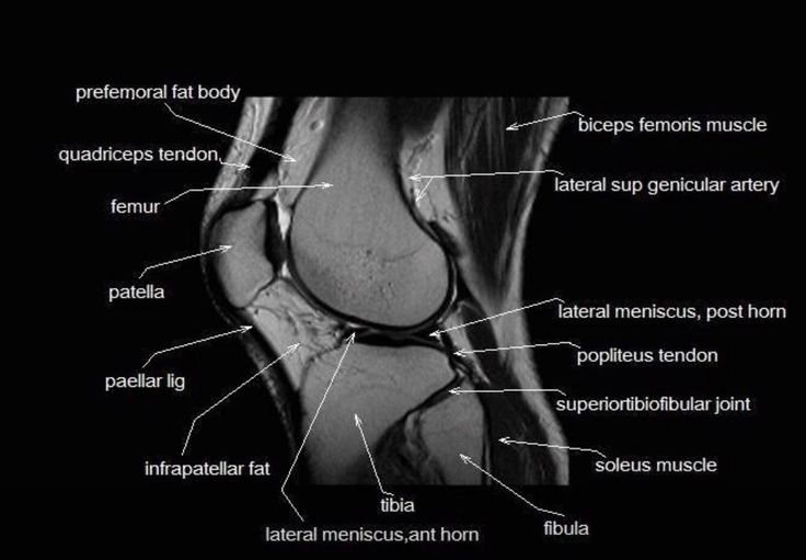 103 best MRI images on Pinterest | Human body, Physical therapy and ...