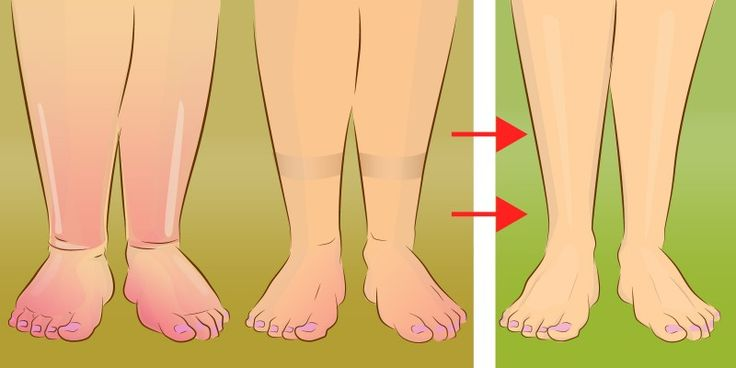 Swollen legs are a thing of the past. With this simple trick, you'll get rid of water retention.