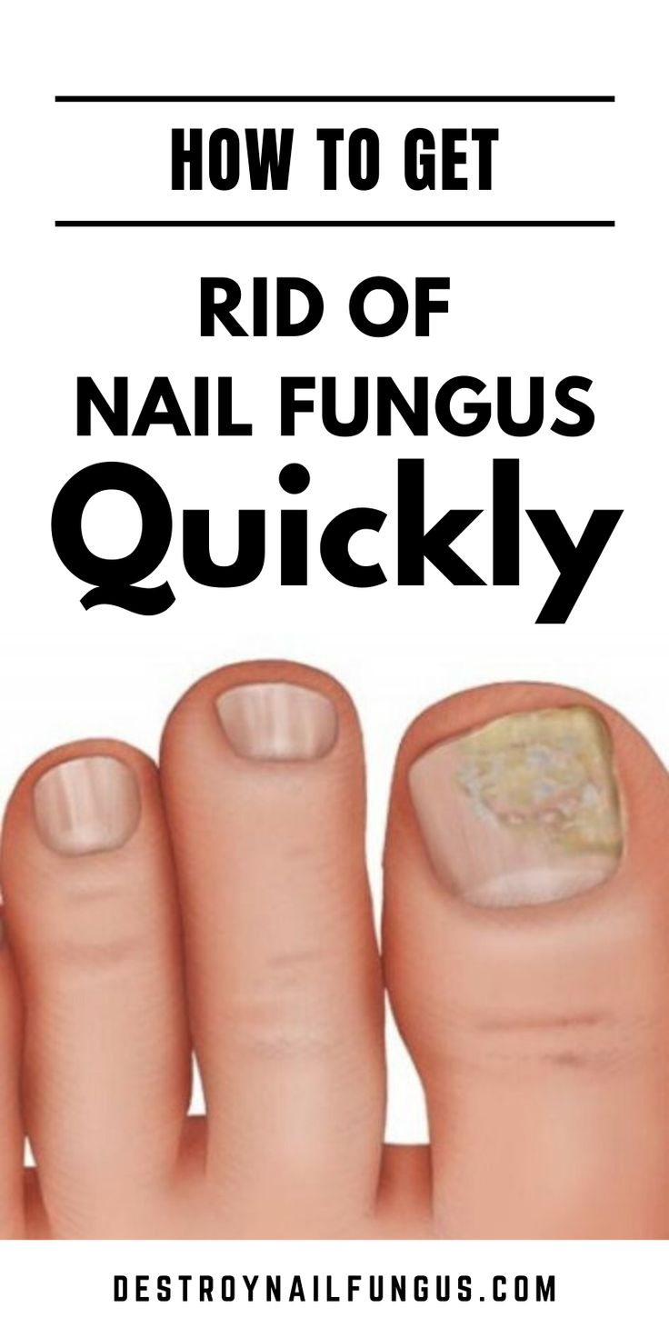 How to get rid of nail fungus quickly