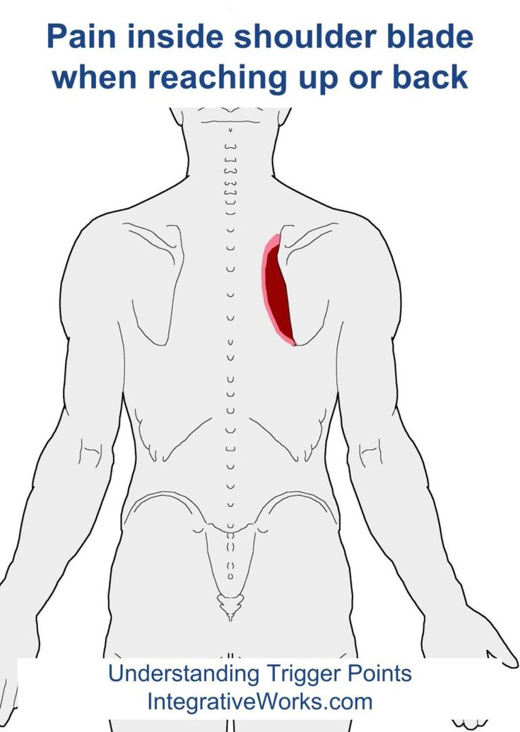 Understanding Trigger Points - Pain inside the shoulder blade when reaching up or back