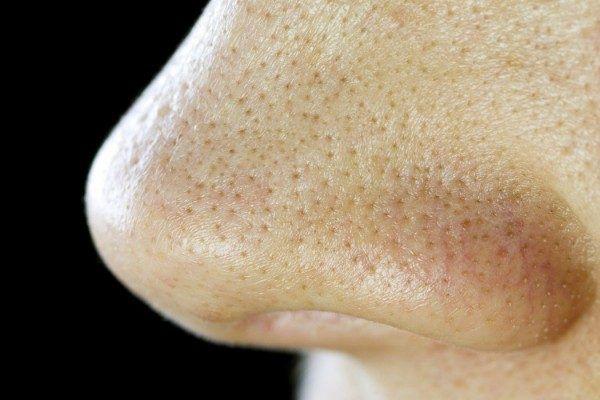 鼻、頬のプツプツ毛穴を10日程度でキメ肌に変える1000円のアイテムが凄いのでシェアします!   Happiness Woman