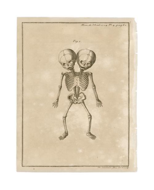 Mais De 25 Ideias Nicas De Conjoined Twins No Pinterest -1419