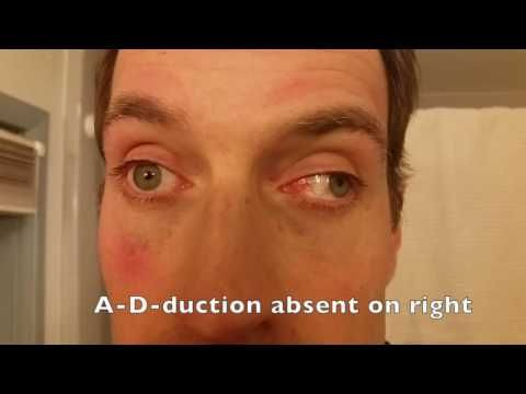 Reel-Example: Internuclear Ophthalmoplegia (MLF lesion on right) - YouTube
