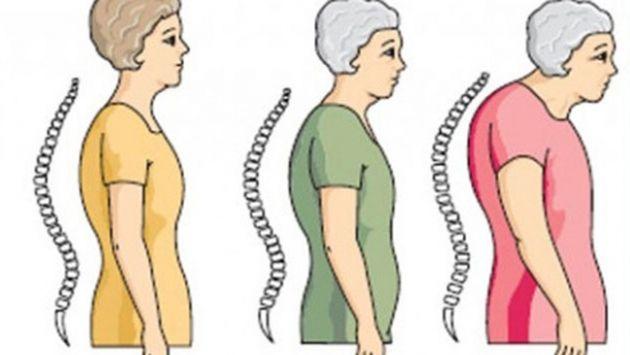 Dengeli Beslenmek ve Egzersiz Kemik Erimesini Önlüyor | Yaşam ve Toplum Dergisi
