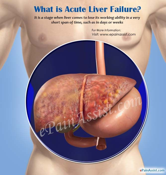 What is Acute Liver Failure?