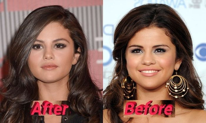 Selena Gomez Plastic Surgery Or Special Make Up Really Mit