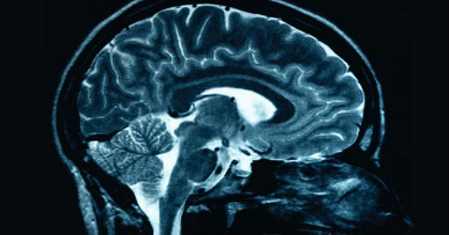 Uno de los temores de los adultos, en tanto se van acercando cada vez más a la senectud, es padecer Alzheimer. Pero, ¿qué pensaría si supieras que esta enfermedad puede ser detectada varios años antes de que se manifieste?, parecería un tanto descabellado, ¿no es así?, pero es algo cierto. Una investigación con escáneres, hecha por científicos del Hospital General de Massachusetts y el Centro Médico de la Universidad de Rush, en Estados Unidos, arrojó que los pacientes que llegan a…