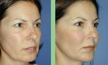 Win The Eternal Aging Predicament Doing Facial Acupressure And Facial Strengthening Exercises
