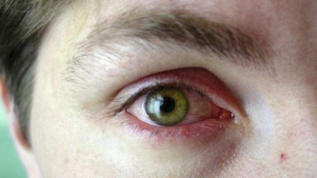 Soigner une conjonctivite naturellement (Yeux rouges? Yeux qui piquent? Yeux qui pleurent? Dîtes merci aux pollens, vous avez sûrement une conjonctivite allergique ...)