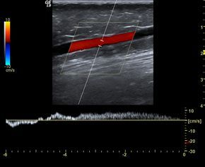 ECR 2011 / C-1781 / : A guide to Doppler US evaluation of chronic lower limb venous insufficiency - EPOS™
