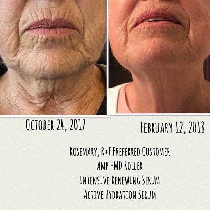 """AMP MD roller brings the dermatology treatments home with you! IRS is 20X more potent than retinol! RetinAl is THE closest thing you can get to prescription strength Vitamin A without a prescription. 1. DIMINISHES the appearance of LARGE PORES! 2. Visibly SMOOTHS fine lines and wrinkles and FIRMS the overall texture of your skin! 3. Helps TONE and TIGHTEN sagging skin! Are you ready to get your """"A"""" game on?"""