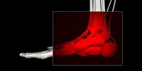 What is Lisfranc Injury and How Long to Recover?Scott Kaar MD. Pinned by SOS Inc. Resources @sostherapy.