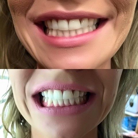 Another happy client Beautiful teeth beautiful smile This client had great teeth to begin with but wanted few shades lighter. With Gleaming Smiles products we achieved what the client was after Call now 96505454 for a teeth whitening session  http://www.gleamingsmiles.com.au/