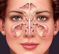 sinusite traitement