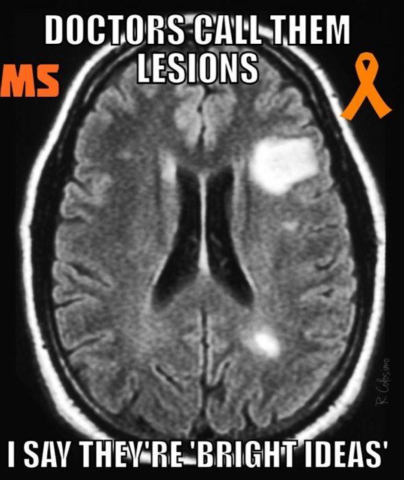 ᘻยℓէᎥƥℓҽ ᏕƈℓҽґσʂᎥʂ ( ͡° ͜ʖ ͡°) 【ツ ᘻᏕ Ӈยɱσґ 【ツ ¯_(ツ)_/¯ ~ Multiple Sclerosis - bright ideas
