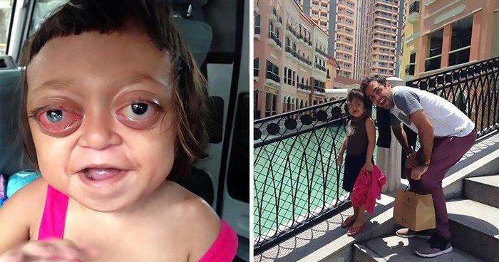 Μητέρα πούλησε το ανάπηρο κορίτσι της σε συμμορία για να ζητιανεύει μέχρι που το έσωσαν  #Αληθινέςιστορίες