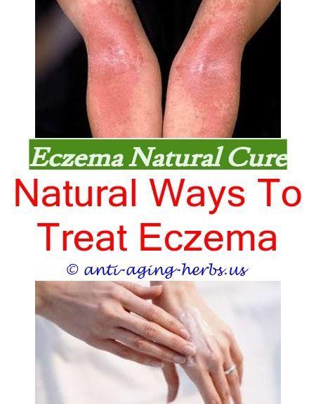 Noni cream for eczema Hydrocortisone cream for eye eczema