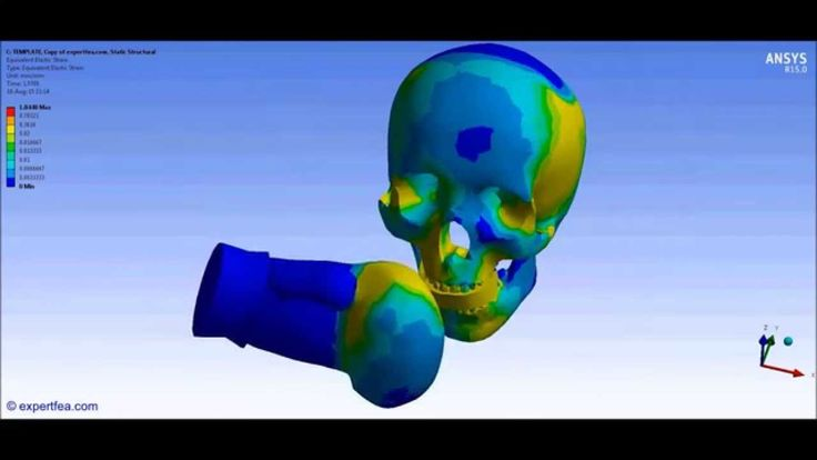 ANSYS Workbench Biomechanics FEA of the boxing punch of a plastic skull ...